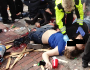 Boston bombing victim Krystle Campbell up close face obscured